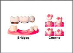 Dental Crown and Bridge Implant Clinic