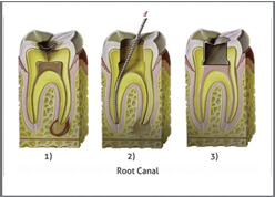 Teeth Cavity and Root Canal Treatment