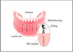 Wisdom Tooth Extraction Treatment in Vadodara